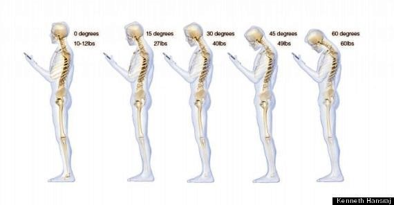 Texting your way to back pain